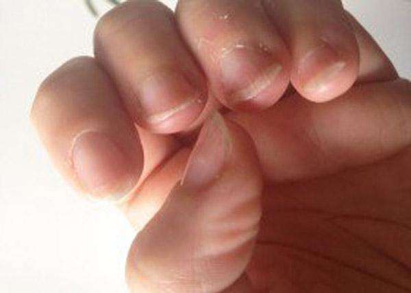 Причина ломкости ногтей на руках у женщин